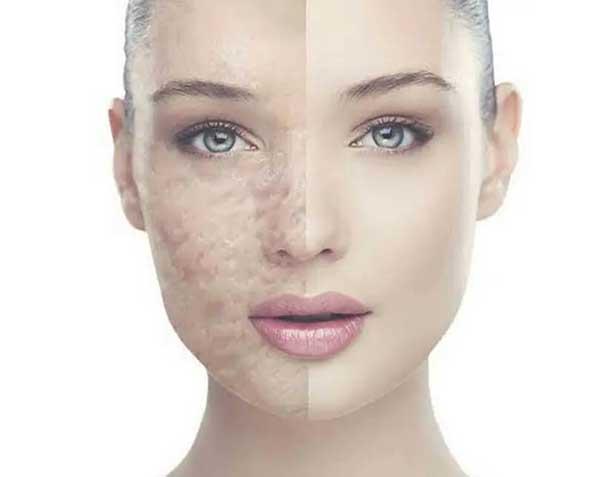 post-acne