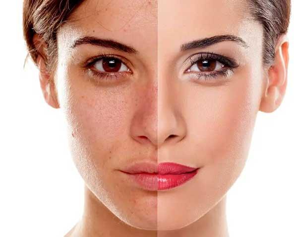 tratamiento-manchas-de-la-piel