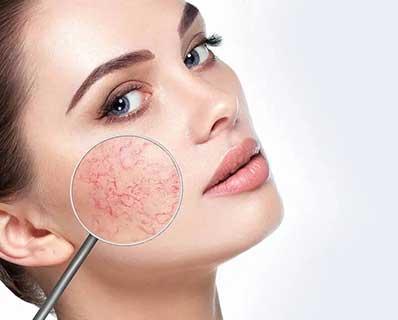 tratamiento-pieles-sensibles